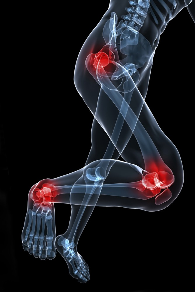 Sporting injuries to hip, knees and ankle